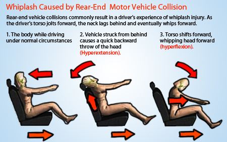 Whiplash injury caused by car accident