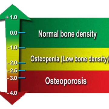 Chart showing normal bone density vs Osteoporosis