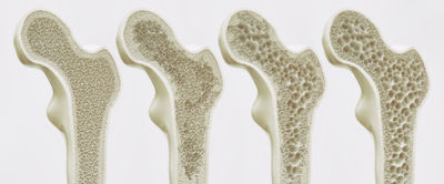 Photograph showing the progression of Osteoporosis in the Femur